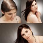 Unique Hair Loss Solutions