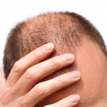 Unique Hair Loss Treatment For Men