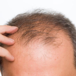 Unique Treatments For Male Pattern Baldness