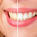 Whiten Your Teeth With A Unique And Simple 75-Minute Procedure