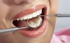 restorative-dental-treatments