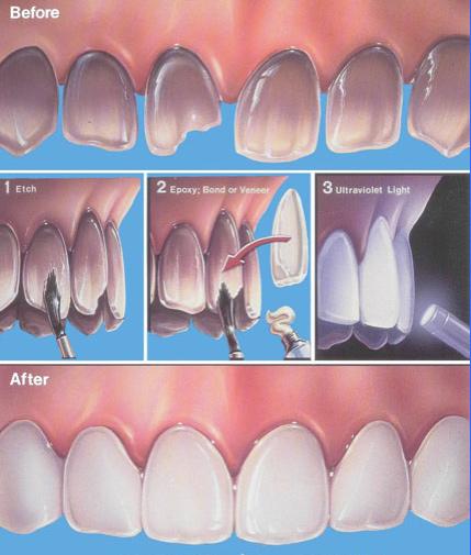teeth-veneers